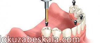 implant fiyatları, implant nasıl yapılır, diş implantı