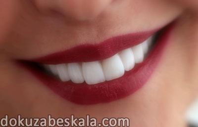 zirkonyum diş fiyatları, zirkonyum kaplama nasıl yapılır, zirkonyum diş kaplama