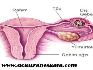 dış gebeliğin sebepleri, dış gebeliğin nedenleri, dış gebelik nedir