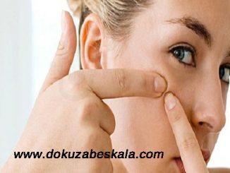 Siyah nokta oluşumunu engelleme, siyah nokta neden oluşur, siyah noktaların tedavisi