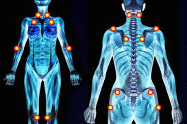 Fibromiyalji hastalığı nedir, Fibromiyalji tedavisi nasıl yapılır, Fibromiyalji belirtileri nelerdir
