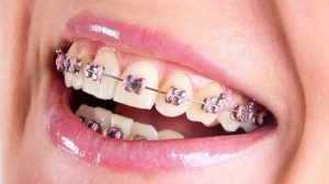 şeffaf diş teli, diş teli nasıl takılır, diş teli takma, metal diş teli