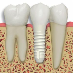 implant markalarının kalitesi nasıl, kaliteli implant markaları, en iyi implant markaları
