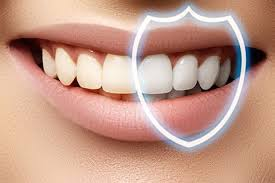 lamine diş nedir, lamine diş nasıl yapılır
