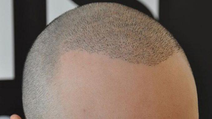 saç ekim merkezi, saç ekim merkezinde çalışanlar