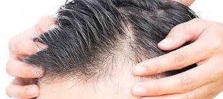 uygun saç ekimi, saç ekim fiyatı, istanbul saç ekimi