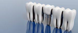 implant yaptırma, kaliteli implant yaptırma, implant markaları