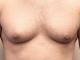 meme küçültme, erkeklerde meme küçültme, lazerli erkek meme küçültme ameliyatı