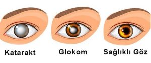 Göz tansiyonu, glokom, tansiyon2