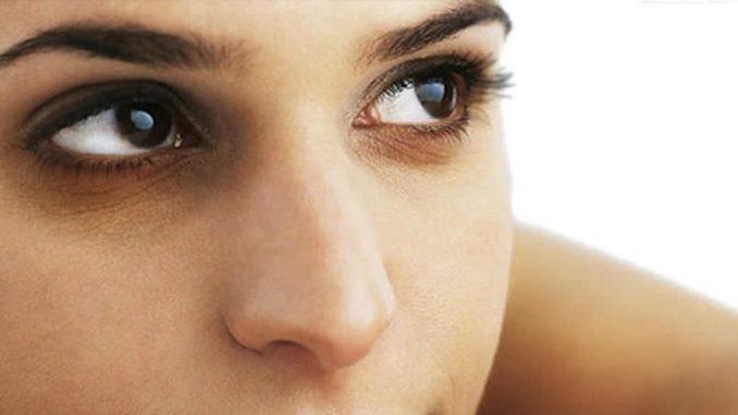 göz altı morlukları, göz altı morluklarını geçirme, göz altı morluklarını giderme