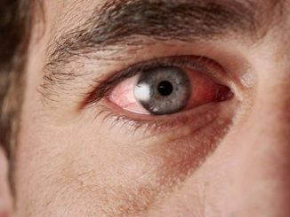 göz tansiyonu , tansiyon , göz tansiyonu kanaması