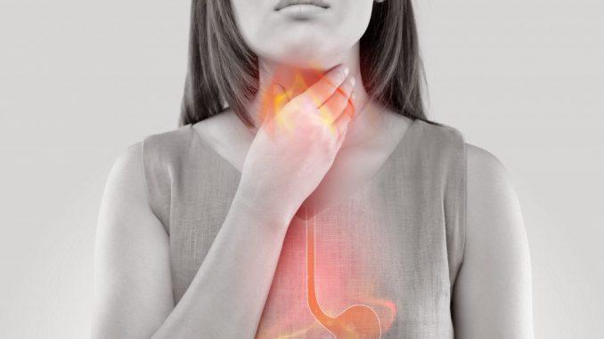 doğal reflü tedavisi, reflü tedavisi yapımı, reflü nasıl tedavi edilir