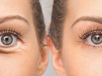 göz torbaları, göz torbası tedavisi, göz torbası nasıl tedavi edilir