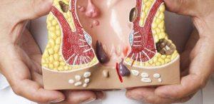 basur nedenleri, basur tedavisi, makattan kan gelmesi