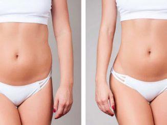 liposuction merkezleri, liposuction yapan merkezler, liposuction merkerlezi nerelerde