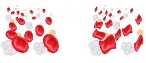 akdeniz anemisi, akdeniz anemisi teşhisi, akdeniz anemisi tedavisi