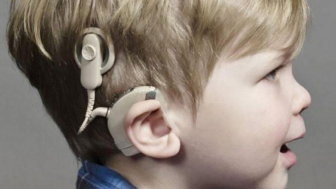 biyonik kulak faydaları, biyonik kulak ne demek, biyonik kulak neden kullanılır